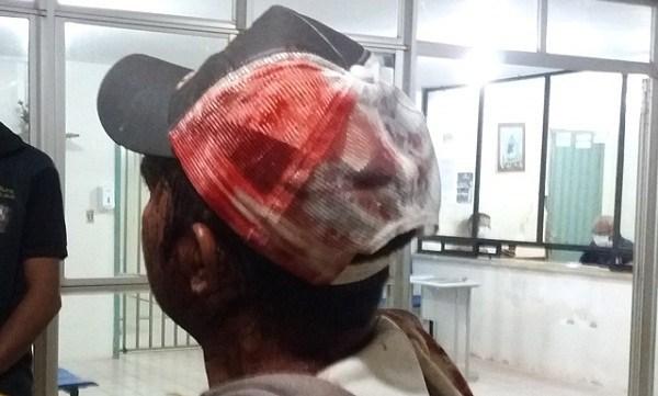 Comerciante é esfaqueado na cabeça por bandidos que praticaram assaltos