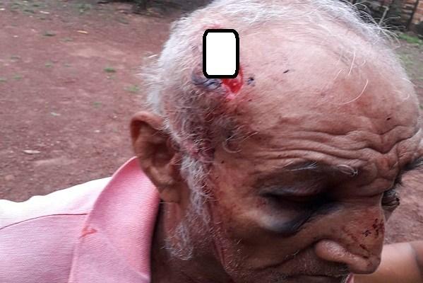 Aposentado de 85 anos é espancado por homens encapuzados em José de Freitas