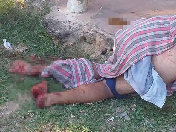 Briga termina com vários feridos, um dos envolvidos teve o pé decepado