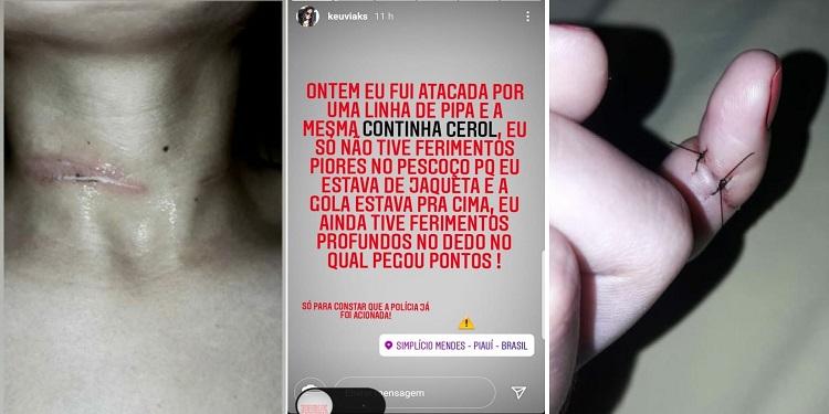 Mulher tem cortes no pescoço e dedo por linha com cerol no Piauí