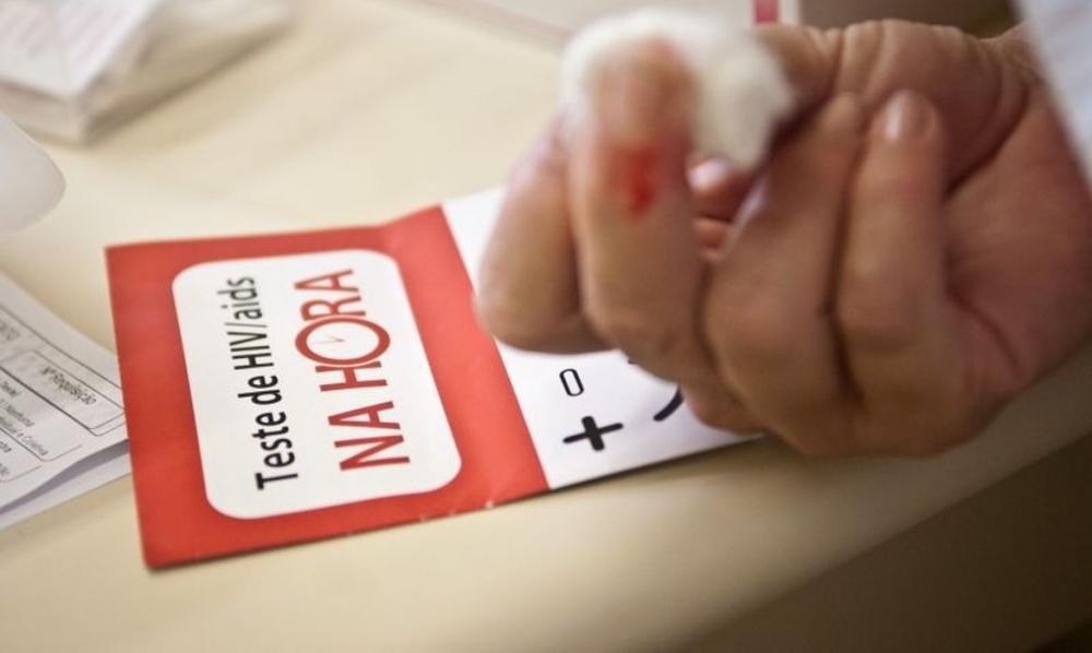 Piauí registra 400 novos casos de HIV por ano e Sesapi faz alerta