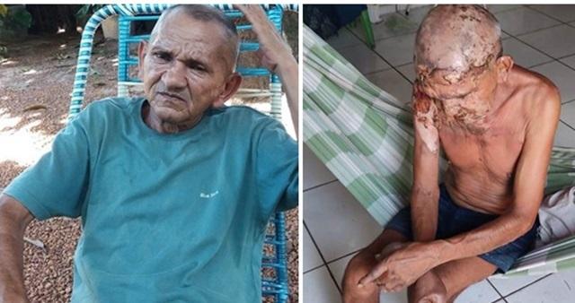 Mulher é suspeita de jogar gasolina e atear fogo em idoso no Piauí