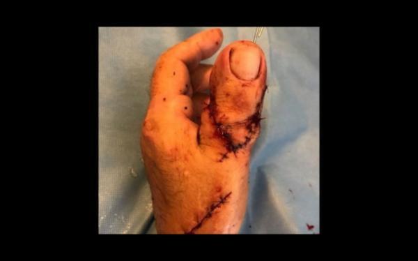 Paciente tem dedão do pé implantado no lugar de polegar; imagem forte