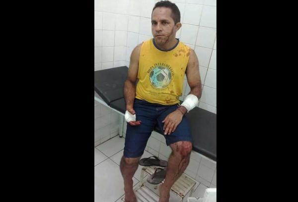 Professor é atacado por vizinho que seria usuário de drogas, em Barras