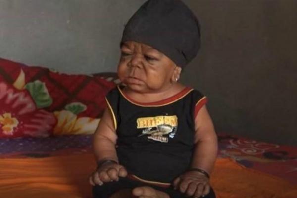 Homem de 23 anos vive em corpo de bebê