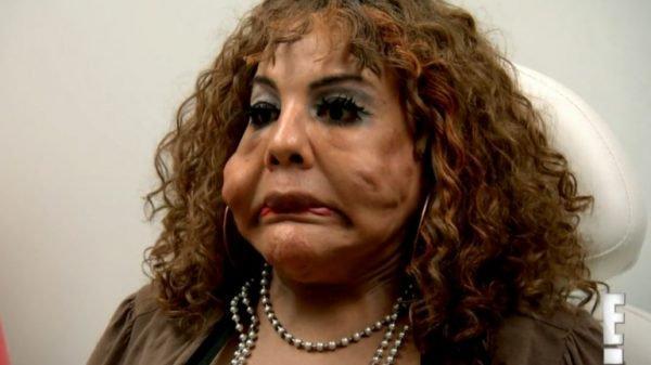 'Médico' injeta cimento em rosto de transexual; veja o resultado