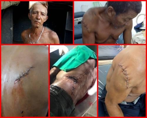 Idosos brigam de facão em cidade do norte do Piauí