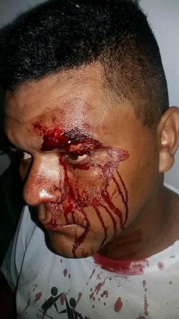 URGENTE: Radialista sofre tentativa de homicídio em Cabeceiras