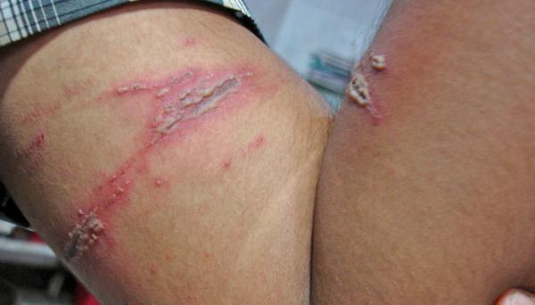 HLM alerta para epidemia de potó em Barras