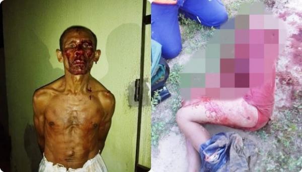 Homem com distúrbios mentais esfaqueia e decepa braço de criança no Piauí