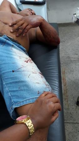 Homem é encaminhado ao hospital após ser espancado em assalto no PI