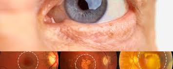 SUS oferta novo tratamento para pacientes com degeneração macular