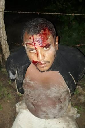 Suspeito foge da polícia, se acidenta de moto e acaba preso no Piauí