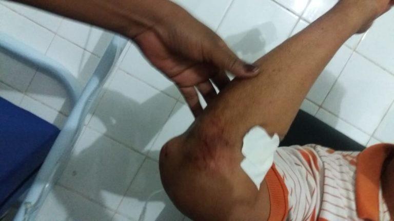 Motorista é espancando com barra de ferro após acidente de trânsito entre Cabeceiras e José de Freitas